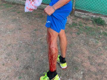 La pierna de Puyol ensangrentada