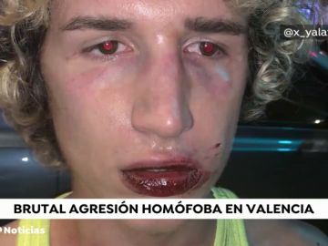 Nueva agresión homófoba a un joven a la salida de una discoteca en Valencia