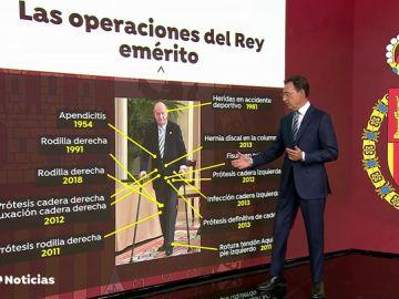 Las 15 operaciones a las que se ha sometido el Rey Juan Carlos
