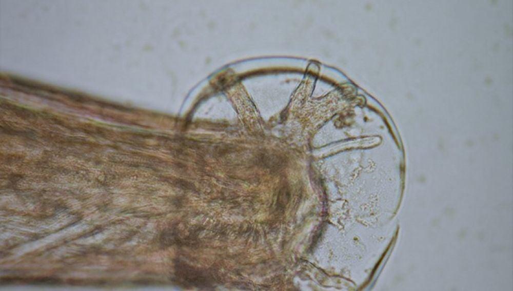 Gusano Angiostrongylus cantonensis