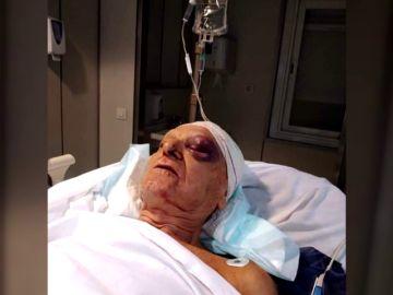 Piden ayuda para localizar a la mujer que atropelló a un hombre en Mallorca