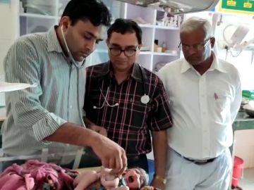 Nace una niña con cuatro brazos en la India