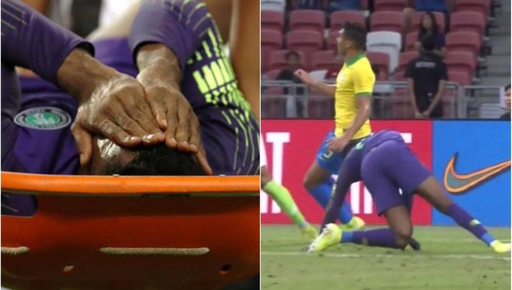 La espeluznante lesión del portero de Nigeria