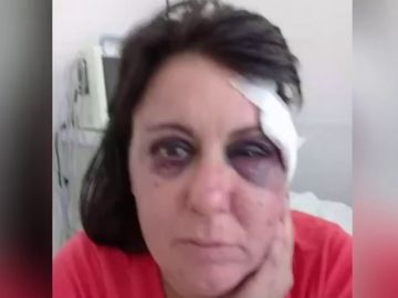 """Una mujer denuncia una brutal agresión de un policía en los calabozos: """"Te voy a enseñar a respetar, hija de puta"""""""