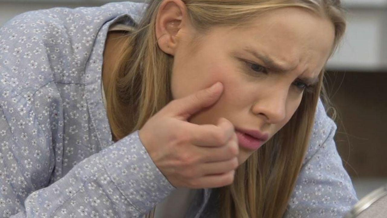 Acné juvenil: vapor, jabón y otros remedios caseros realmente efectivos - Antena 3
