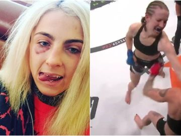 Orion Starr y las consecuencias de su pelea en la MMA