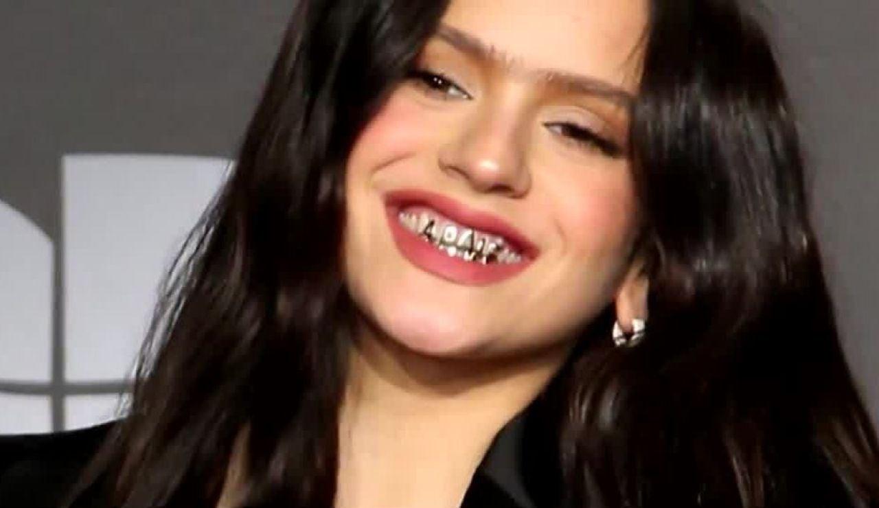 El peligro de los 'grillz' de Rosalía: La tendencia de los dientes de oro