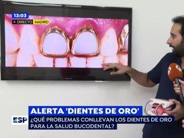 Alerta dientes de oro