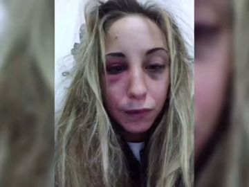 """""""Así me ha dejado al divertirse"""": una joven comparte el maltrato sufrido en redes sociales"""