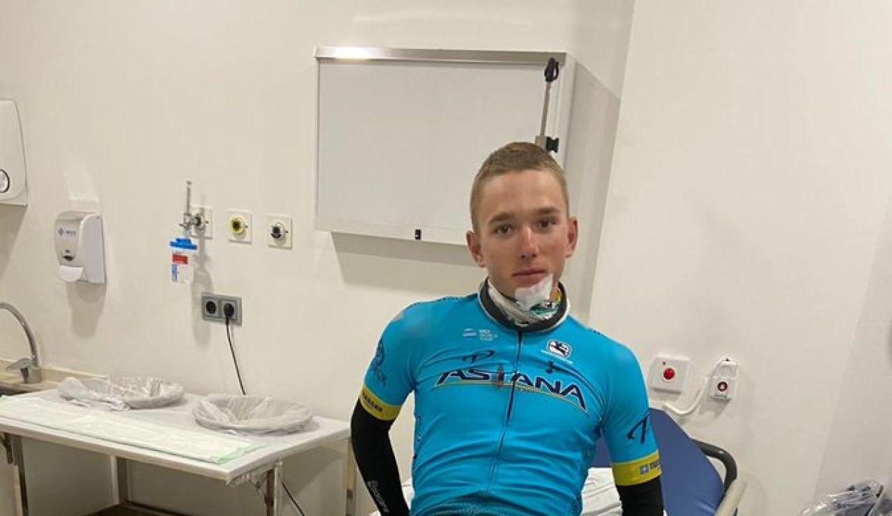 El ciclista Vadim Pronskiy tras sufrir un atropello mientras entrenaba en Altea