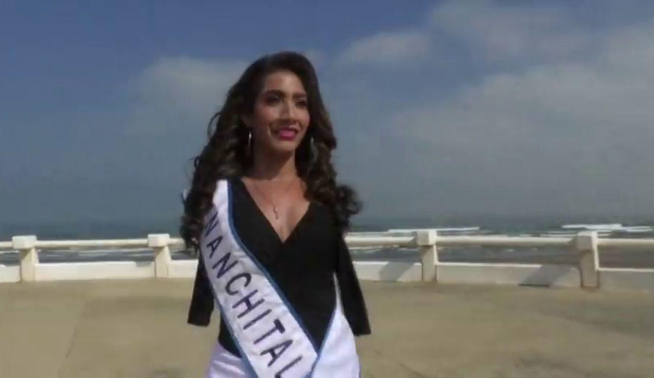 Ana Gabriela Molina, la joven modelo sin brazos que quiere convertirse en Miss México