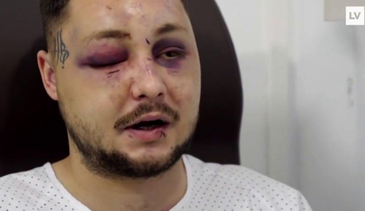 Recibe una brutal paliza por defender a una chica que estaba siendo atacada por su novio