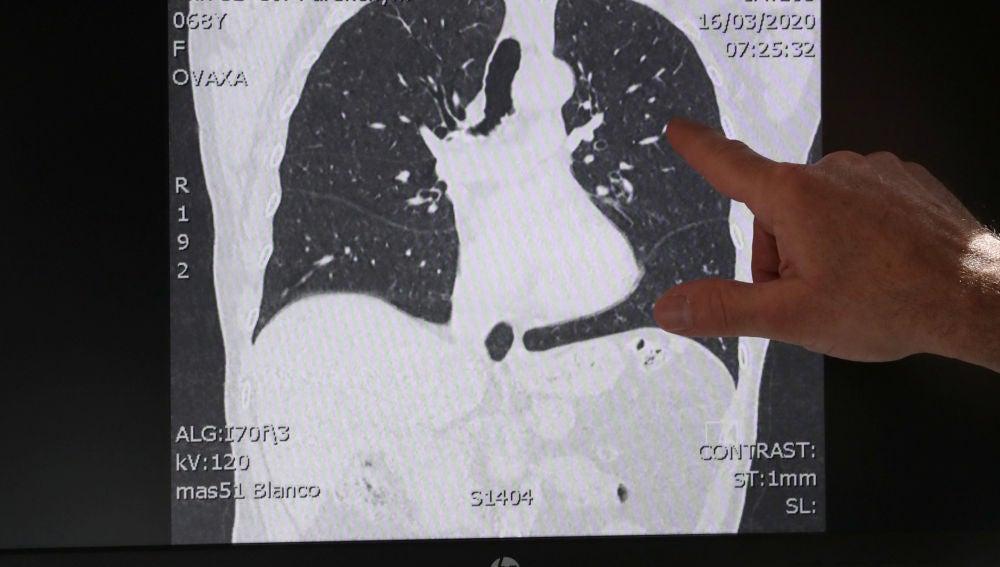 Pulmones afectados COVID-19