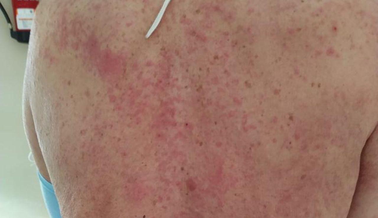 Efectos en la piel del coronavirus