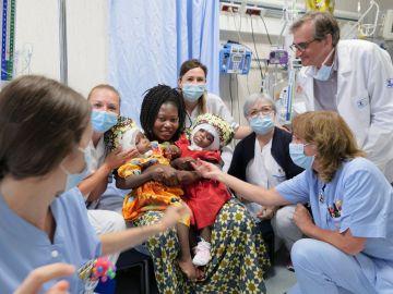 Separan con éxito a dos siamesas en un hospital del Vaticano