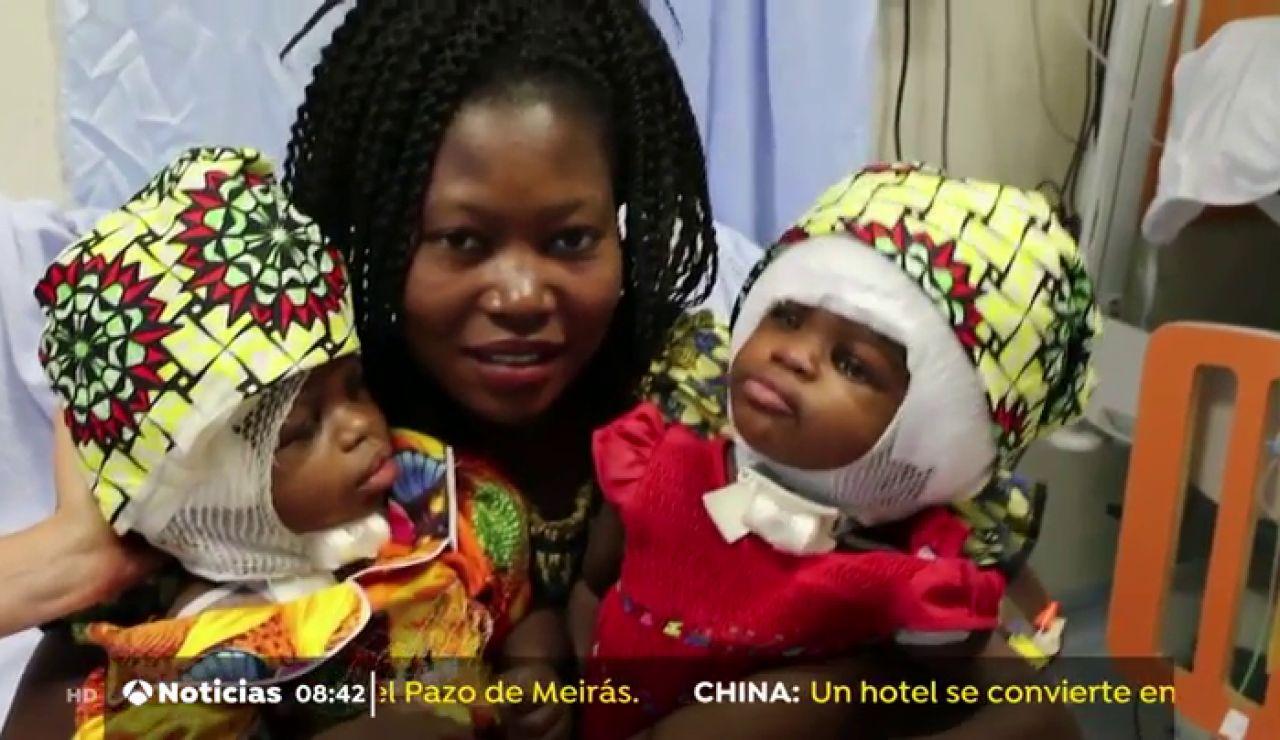 Separan con éxito a dos niñas siamesas unidas por la cabeza en un hospital del Vaticano Bambino Gesù