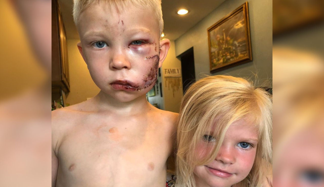 La foto de Bridger Walker tras el ataque del perro