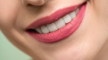 Sonrisa con los dientes blancos