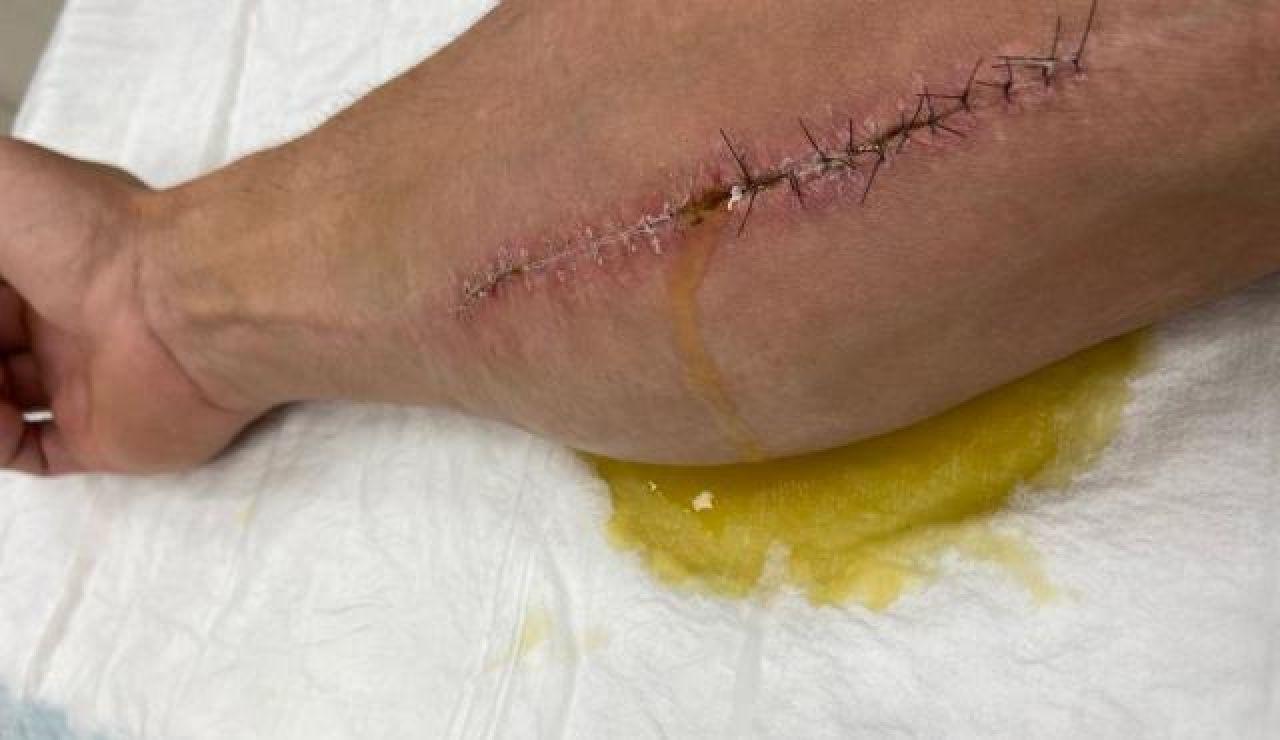 El brazo de Cal Crutchlow tras la operación