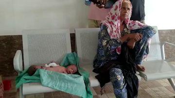 VÍDEO: Una mujer da a luz a unos 'gemelos araña'