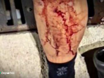 Investigan una brutal agresión de unos ultras a 6 guardia civiles tras un partido en Pego (Alicante)