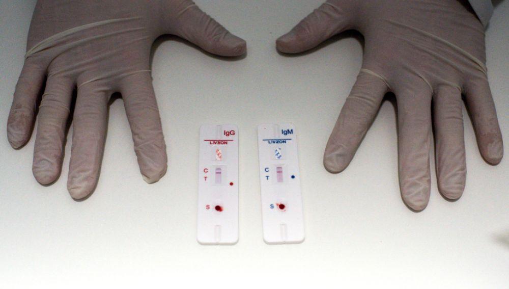 Farmacias y clínicas dentales de Madrid harán test de antígenos