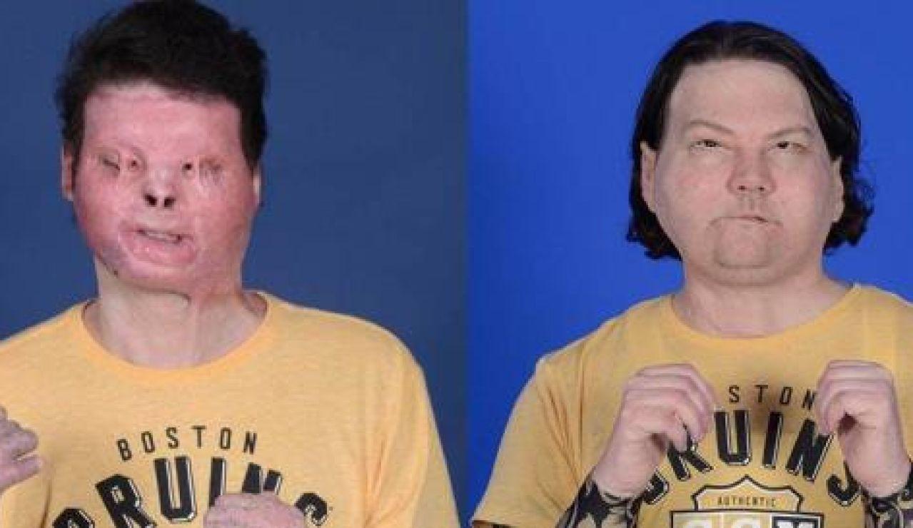 Imagen del antes y después del trasplante simultáneo de rostro y manos