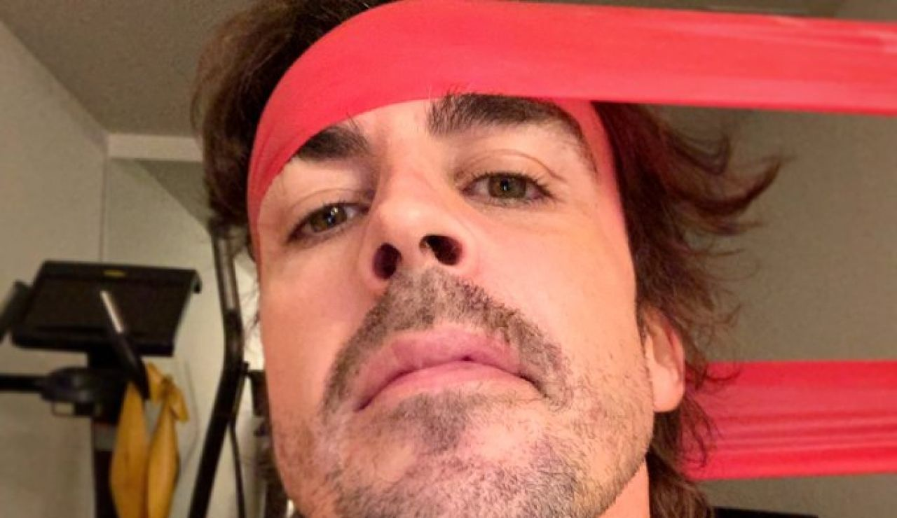 Fernando Alonso publica una fotografía en primer plano de su cara tras su atropello en Lugano