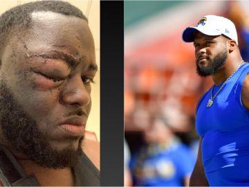 Aaron Donald, jugador de la NFL, acusado de agredir a un hombre en una discoteca de Pittsburgh