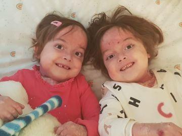 Carla y Noa, las gemelas de seis años con piel de mariposa que solicitan una enfermera que las cure