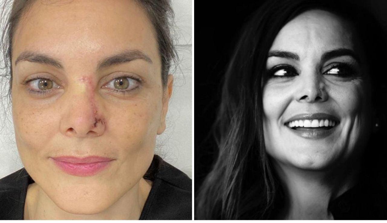 Las razones por las que Mónica Carrillo muestra en Twitter las secuelas del cáncer de piel