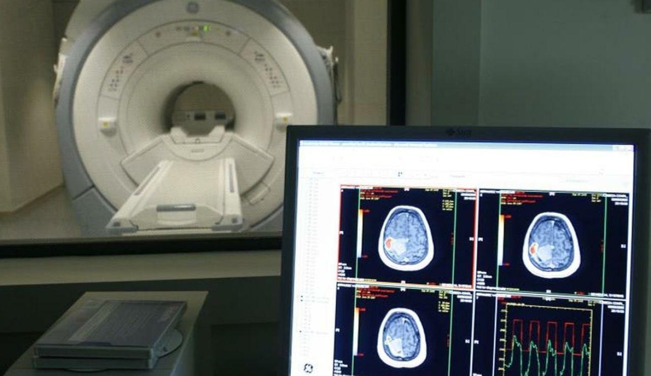 """Estados Unidos aprueba un controvertido medicamento contra el Alzheimer porque """"los beneficios superan los riesgos"""""""