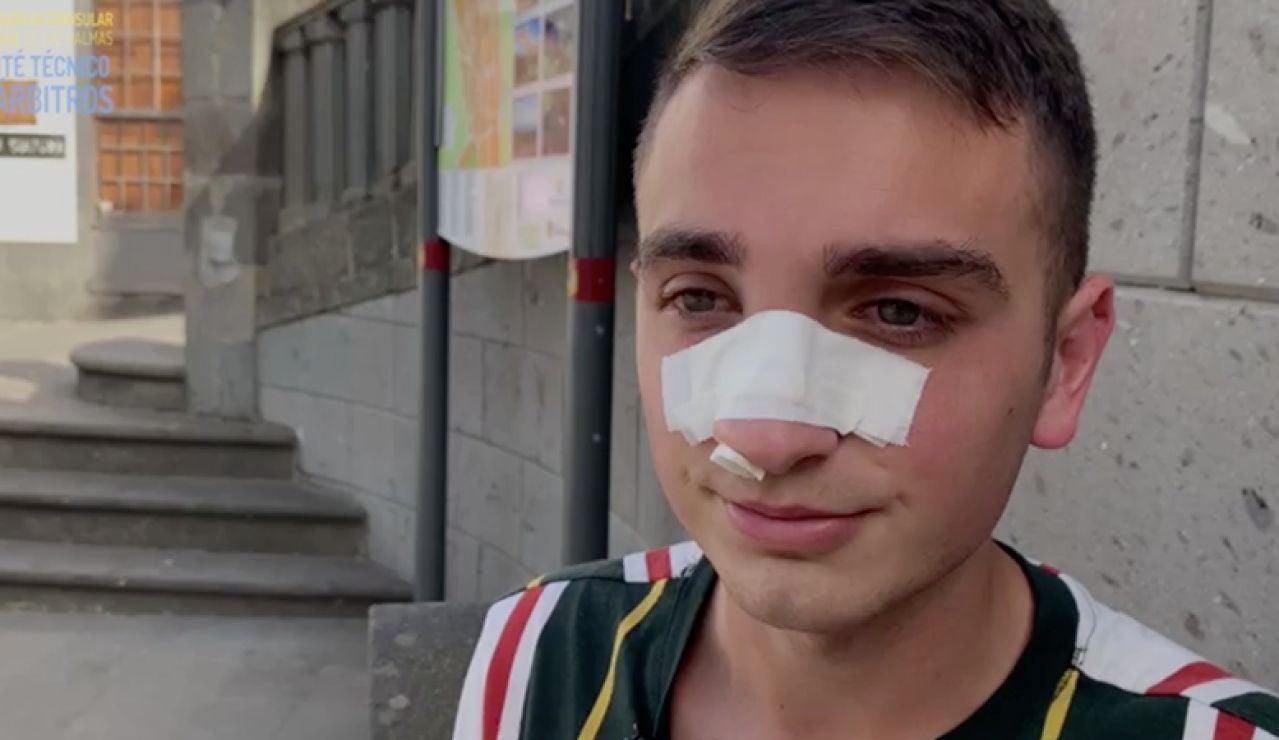 """Brutal agresión a un árbitro en un partido de Preferente en Canarias: """"Me dio un cabezazo y no recuerdo más"""""""