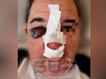 Policía agredido en Zaragoza