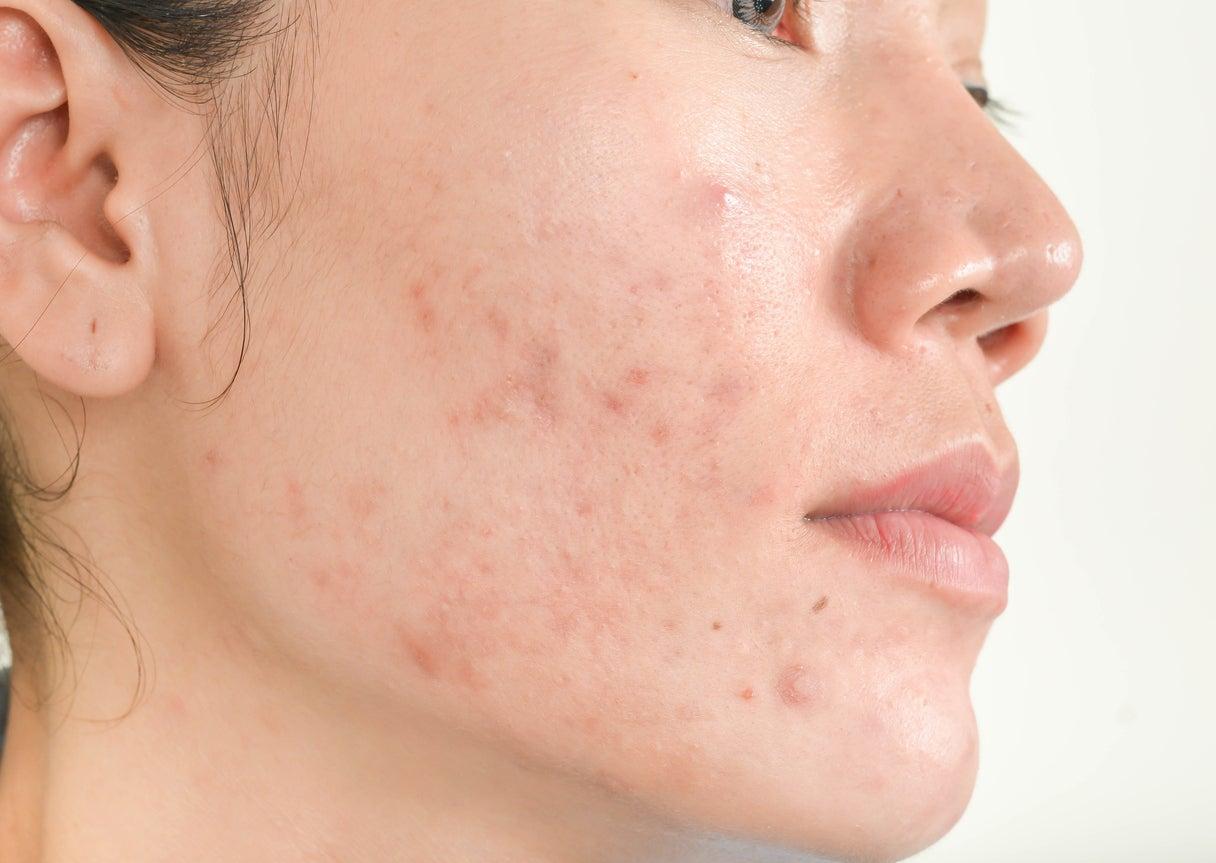 Tres mascarillas naturales para combatir el acné con productos que ...