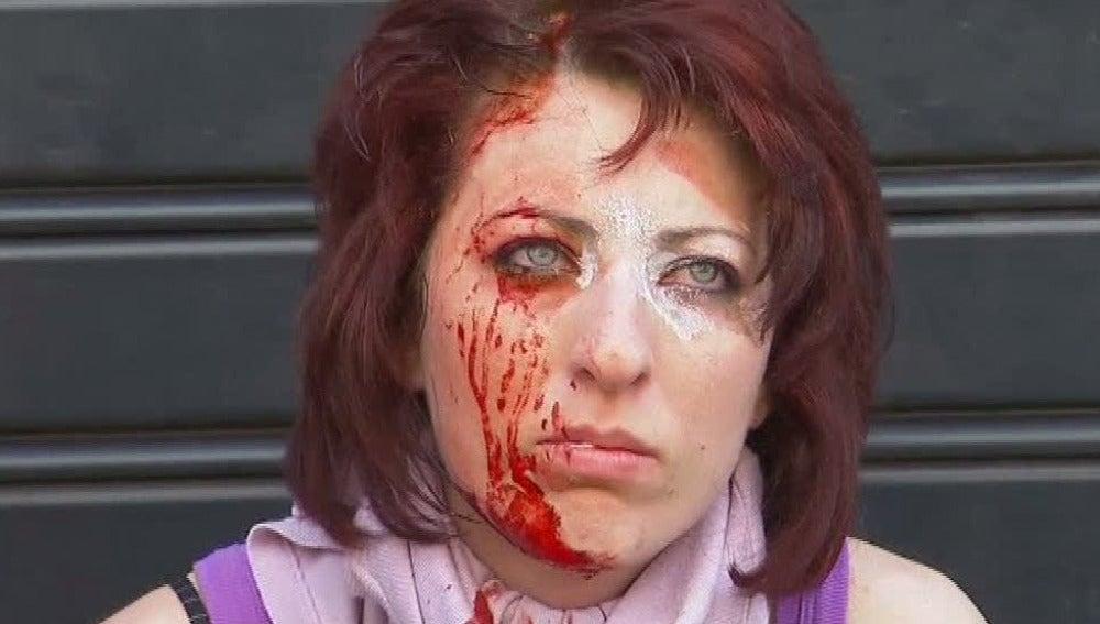 Joven herida en las protestas en Grecia