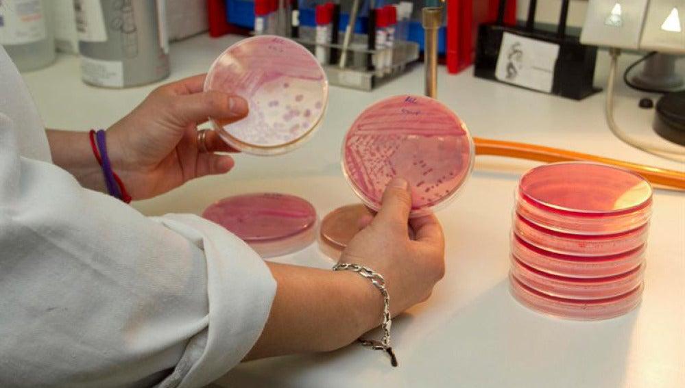 Análisis de laboratorio de la bacteria E.Coli