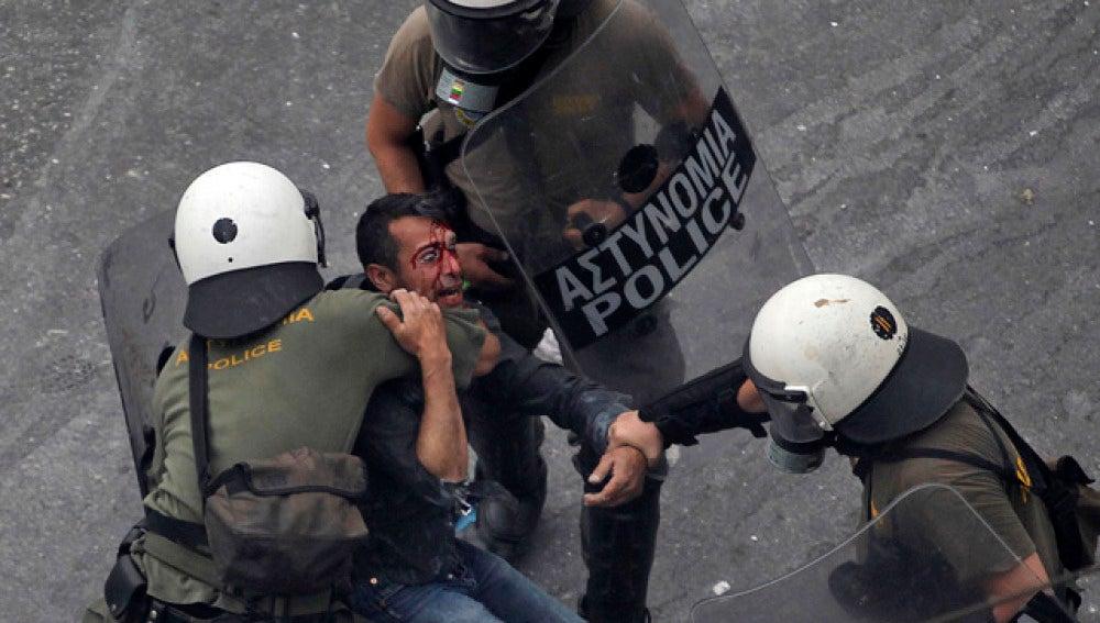 Policías griegos detienen a un joven herido