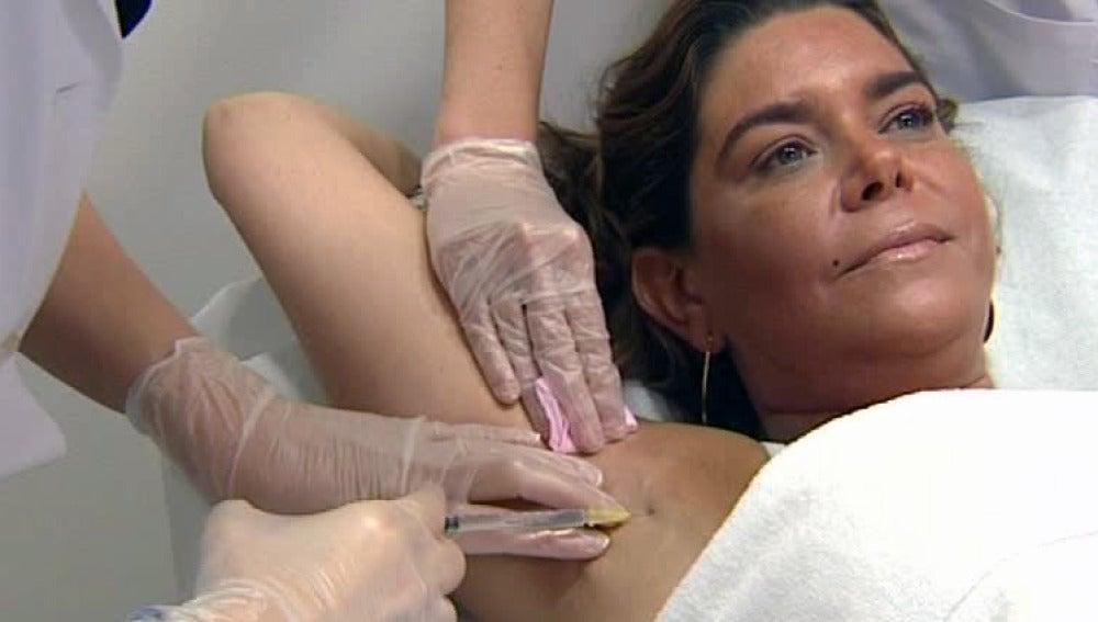 Botox contra la sudoración excesiva