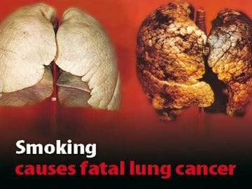 Cartel que advierte de los riesgos de fumar