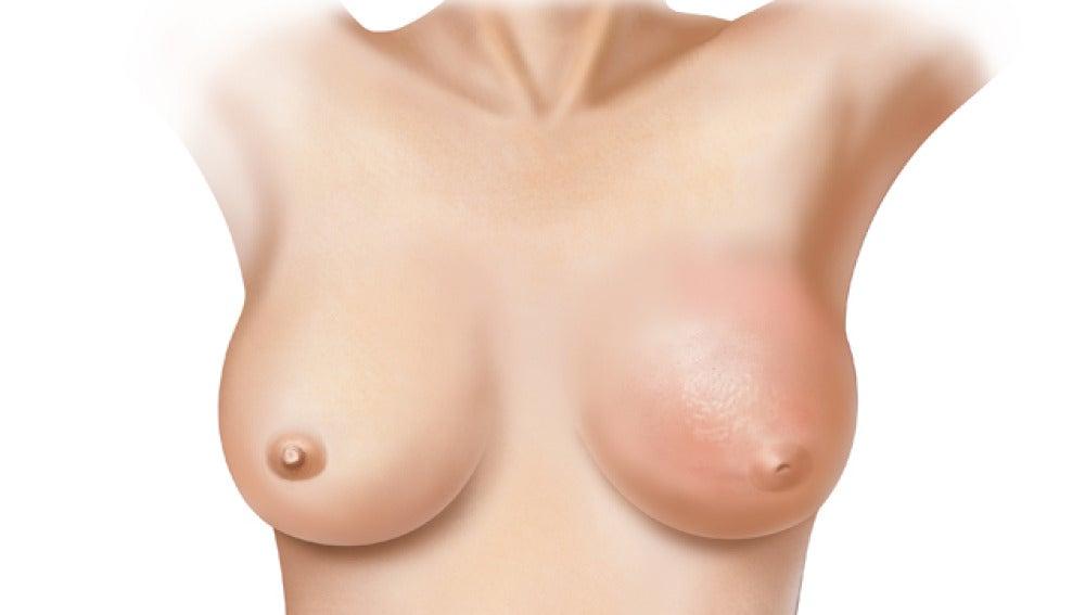 Recreación de un pecho femenino