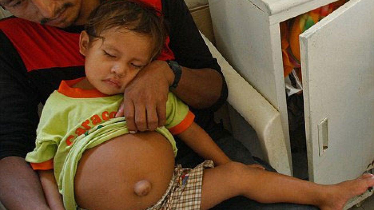 Una niña nació en Israel con un embrión dentro de su estómago