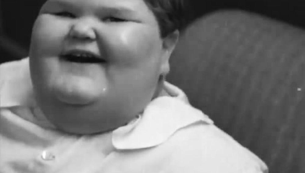 Niño obeso de los años 30