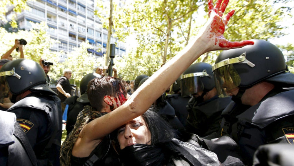 Mano manchada de sangre en la protesta minera
