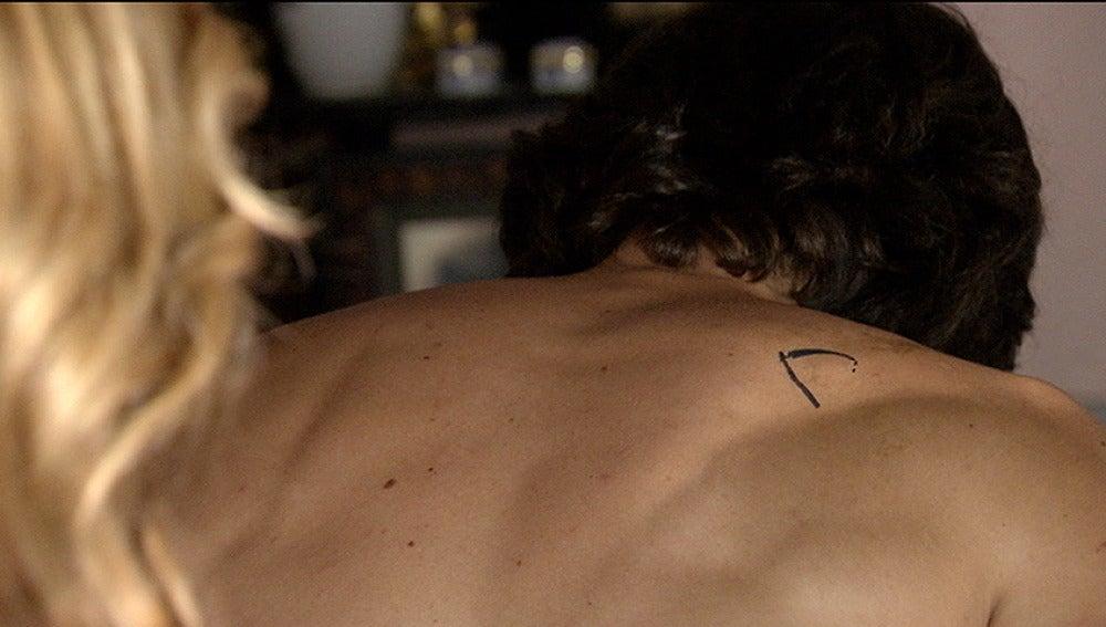Espalda Raúl