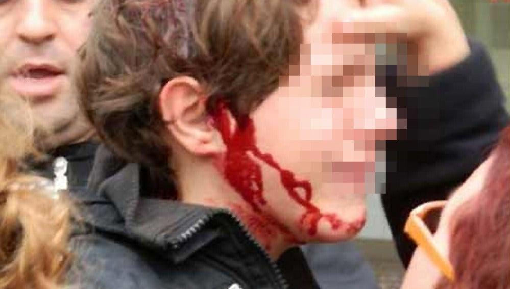 Un menor herido durante la huelga en Cataluña