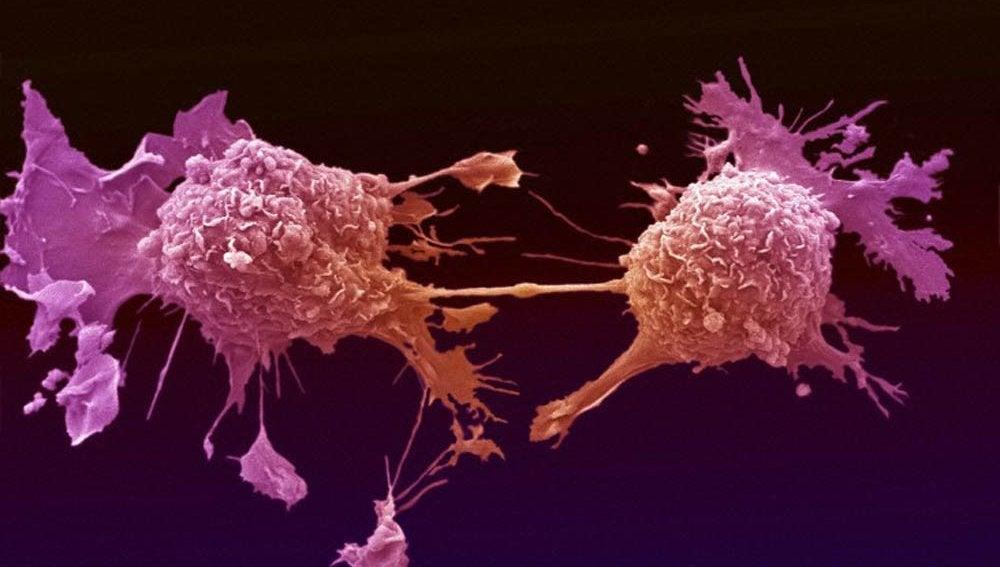 Células de cáncer de pulmón