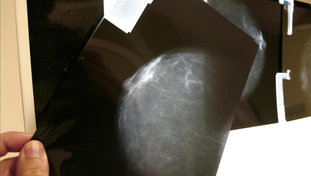 Radiografía de mama.