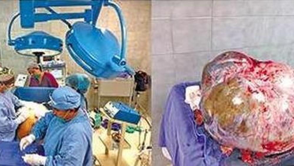 Tumor de 60 kilos extirpado a una mujer