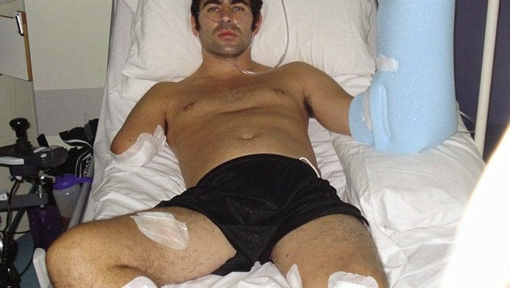 Andy Reid en 2009 cuando sufrió tres amputaciones